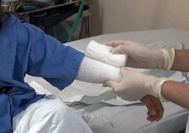 Tolima registró 49 lesionados con pólvora durante festividades de fin de año. 1
