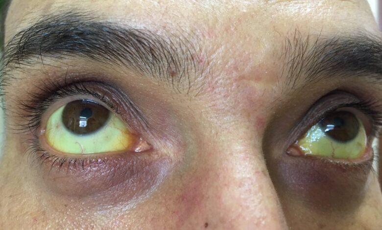 Autoridades de salud advierten sobre posible brote de Leptospirosis en Colombia 3