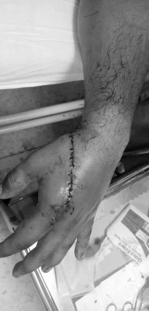 En extrañas circunstancias resultó apuñalado un conductor de taxi en Ibagué 6